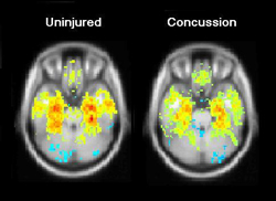 Comparision of brain scans before and after a concussion