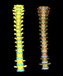 The spine of a human male