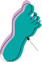 My right foot. Arrow indicates the location of the break.